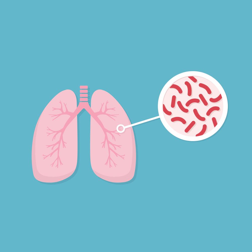 Penyakit Yang Disebabkan Bakteri